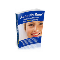 Can You Cure Acne Naturally?